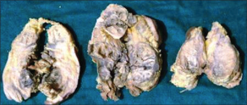 Figure 1: Gross image showing fleshy, gray white, solid tumor mass with large areas of hemorrhage and necrosis