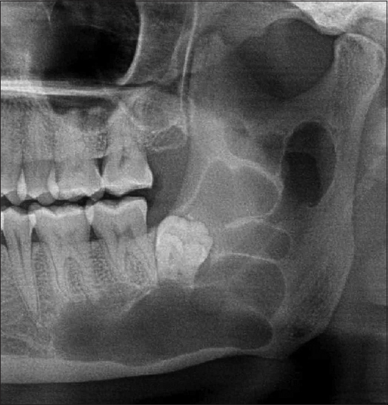 Dental Radiographic Signs Phore S Panchal Rs Baghla P Nabi N