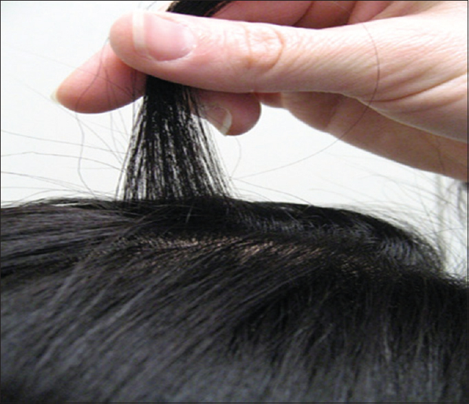 Figure 1: Hair-pull test