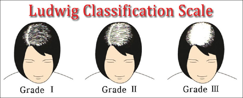 Figure 2: Ludwig's grading for female pattern hair loss
